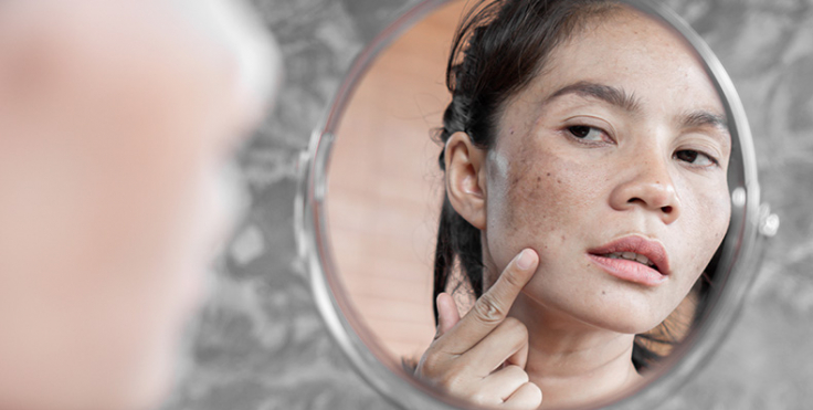 This image has an empty alt attribute; its file name is hyperpigmentation-vs.-melasma-understanding-the-difference-37pputimisskpzmprvqlk9p6zmr4edxqvcanun6x7chd3o872.jpg